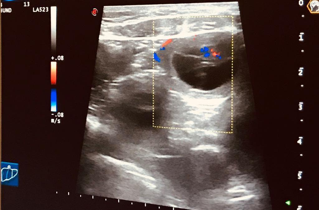 Hurra, der Ultraschall ist positiv!